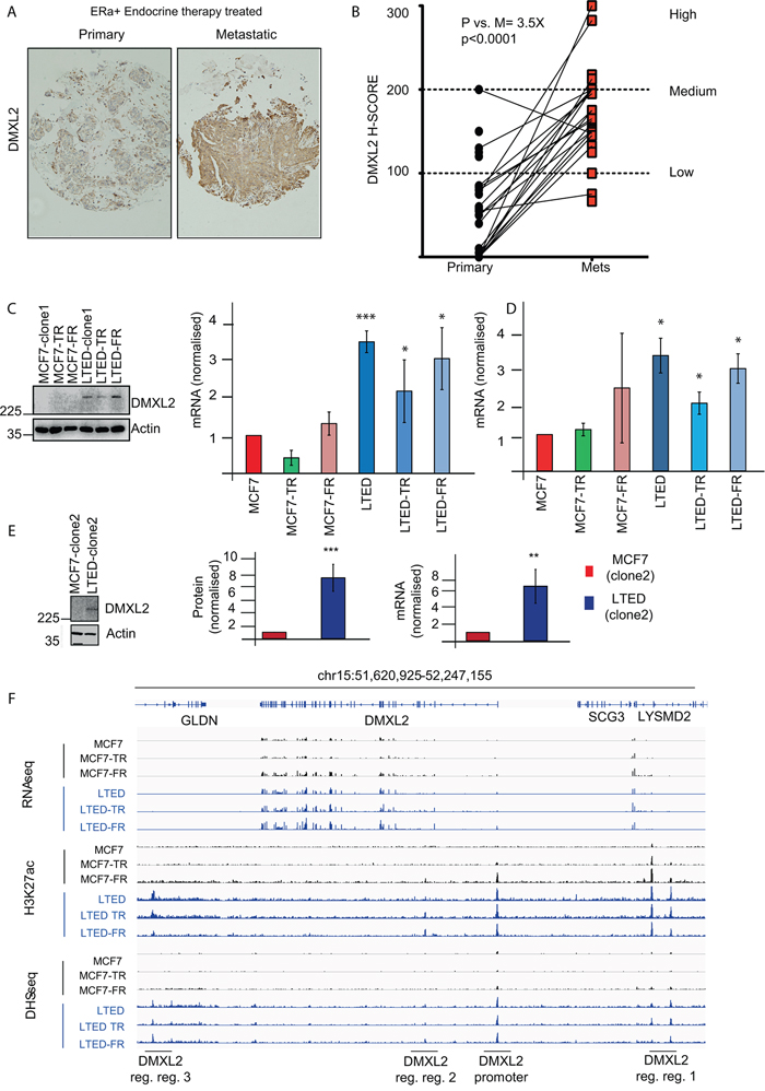 DMXL2 is overexpressed in metastatic tumors resistant to endocrine therapy.