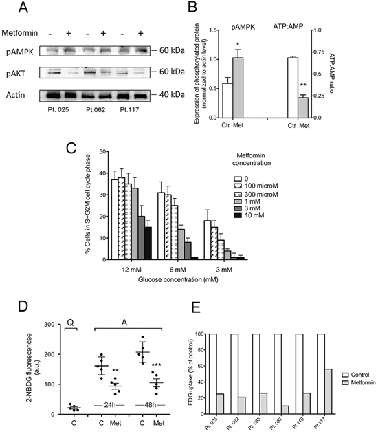 Metformin increases CLL cell AMPK phosphorylation and decreases intracellular phosphorylated glucose available for glycolysis.