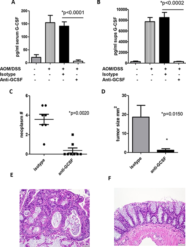 G-CSF plays an important role in neoplasm development in AOM/DSS treated mice.