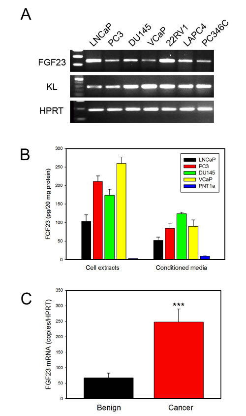 FGF23 is expressed in PCa cell lines and prostate and PCa tissues.