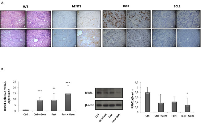 Immunoistochemical evalutation of hENT1, Ki67 and BCL-2 expression in PC biopsies of mice allocated in to the 4 different groups.