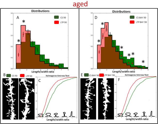 Glycogen phosphorylase inhibitor, BAY U6751, affects HFS induced dendritic spine morphology in aged animals.