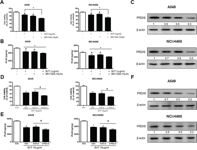 Effect of SVT with AP-1 inhibitor (SR11302) and siRNA of c-Fos on the expression of PRDX6.