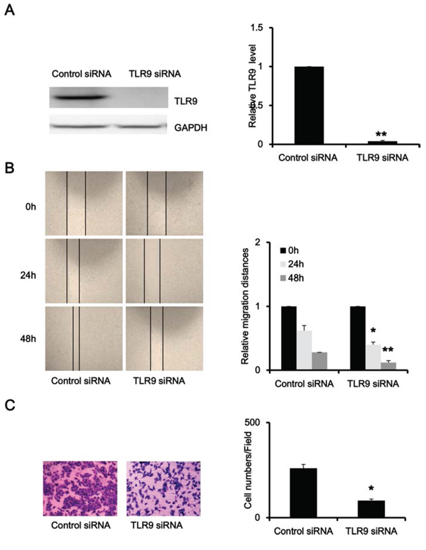 Silence of TLR9 inhibited migration and invasion of PC-3 cells.