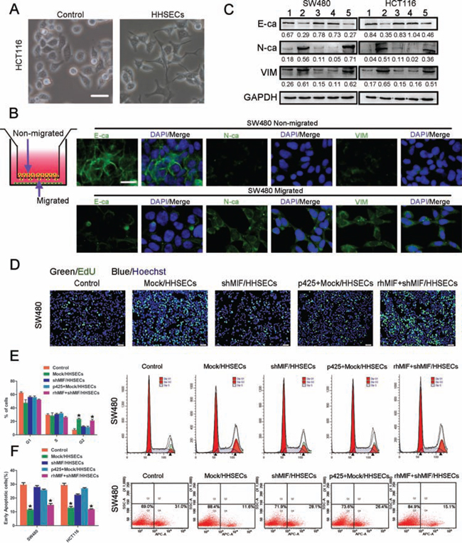 MIF released by HHSECs promotes the EMT, proliferation, and apoptotic resistance of CRC cells.