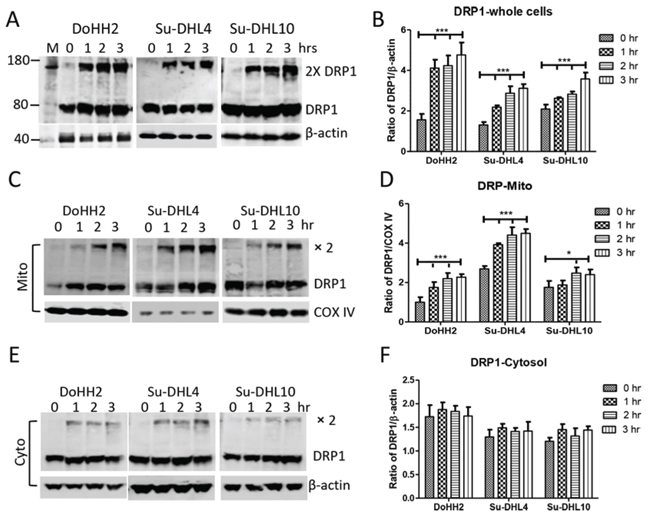 Irradiation induced DRP1 mitochondrial translocation and oligomerization.