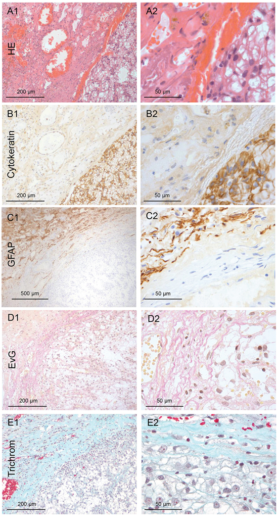 Renal cancer: Type 0 non-infiltration.