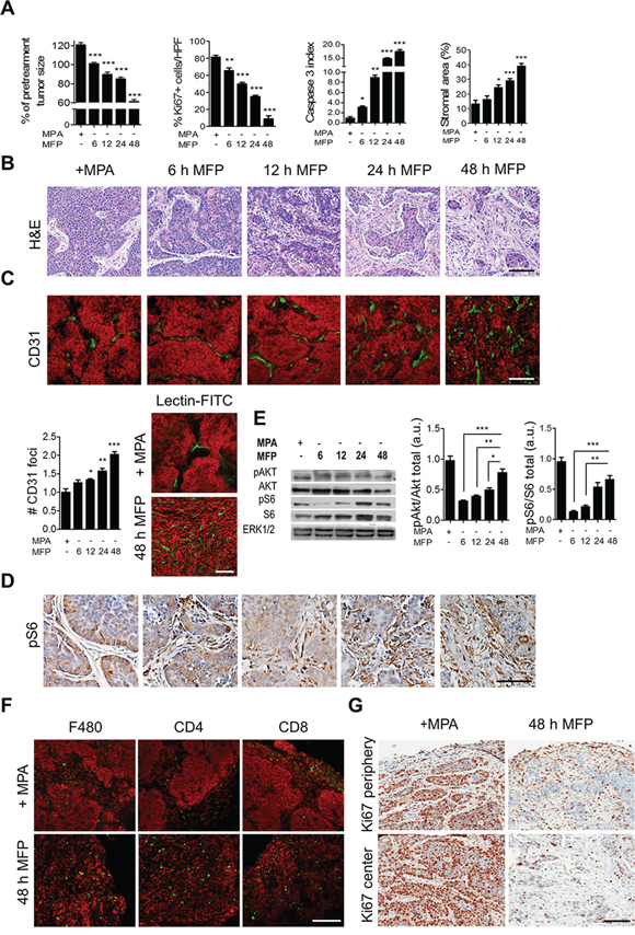 Time course and cellular mechanisms involved in stromal reaction in C4-HD tumors.