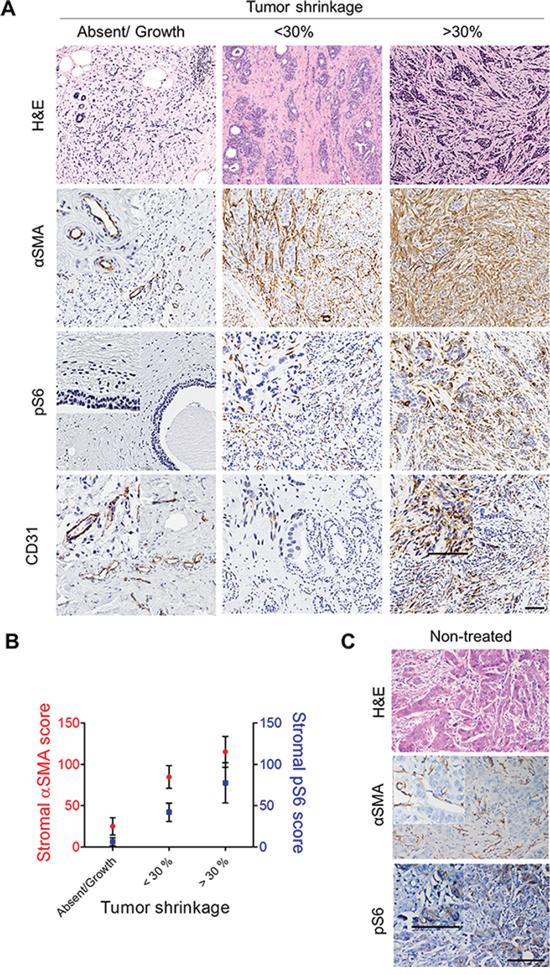 αSMA correlates with tumor reduction and stromal pS6 after neoadjuvant endocrine therapy.