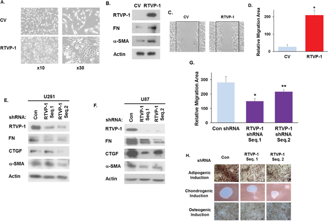 RTVP-1 induces and is required for maintaining the mesenchymal phenotype of glioma cells.