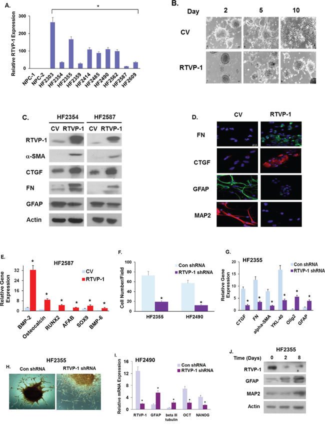 RTVP-1 induces a proneural to mesenchymal transformation of GSCs and is required for maintaining the mesenchymal phenotype of these cells.