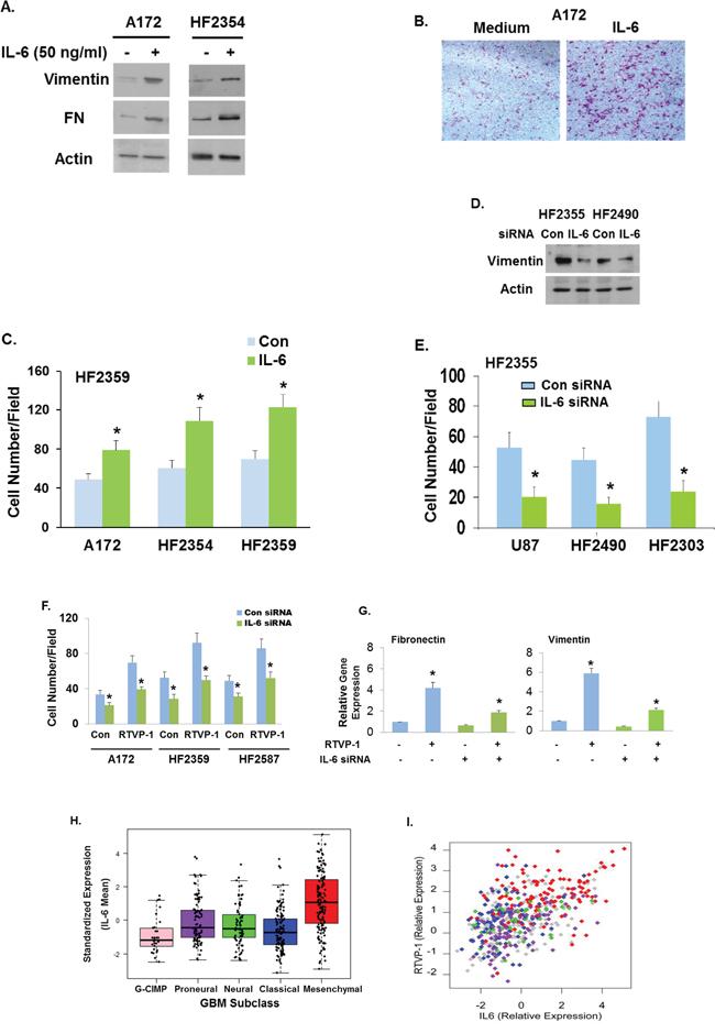 RTVP-1 mediates the mesenchymal transformation of glioma cells via the IL-6 pathway.