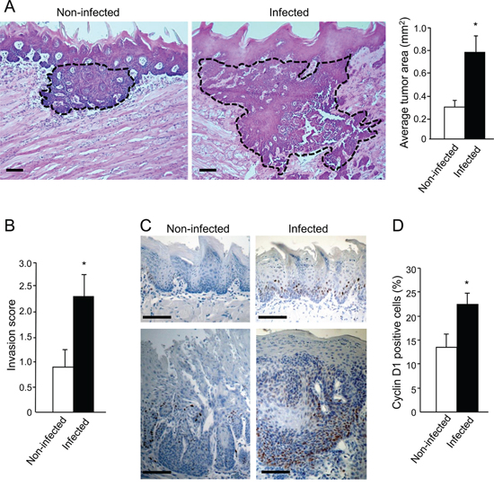 Increased tumor severity in P. gingivalis/F. nucleatum infected mice.