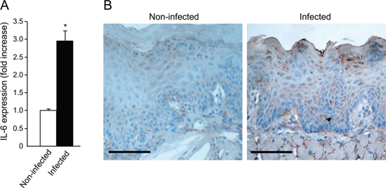 Increased IL-6 levels in tongue epithelium of infected mice.
