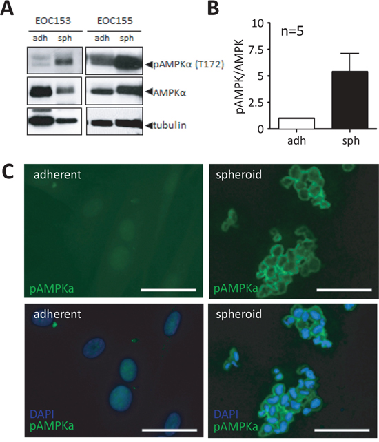 Native ascites spheroids have enhanced phosphorylated AMPK compared to adherent cells.