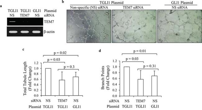 TGLI1 promotes in vitro angiogenesis via TEM7.