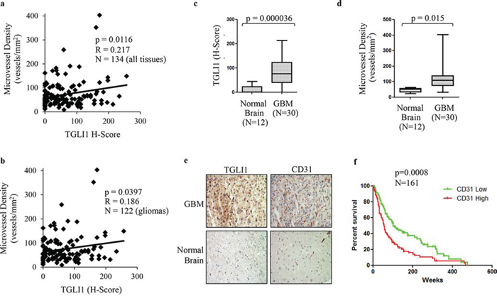 TGLI1 levels are positively associated with microvessel density in patient gliomas.