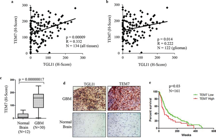 TGLI1 levels are positively associated with TEM7 levels in a cohort of patient gliomas.