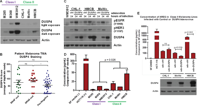 Lack of DUSP4 is a Potential Mechanism for ERBB Activation in Class II Melanomas.