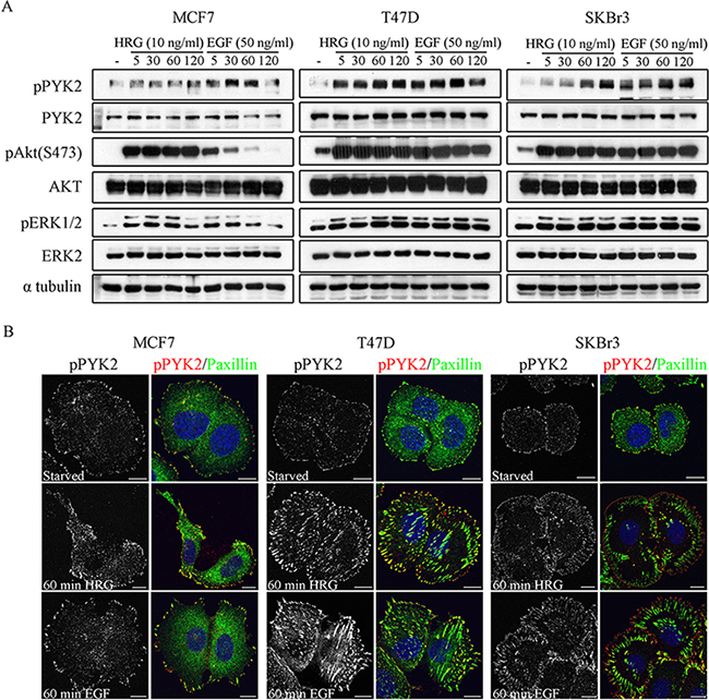Phosphorylation and subcellular localization of PYK2 in EGF- and HRG-stimulated breast cancer cells.