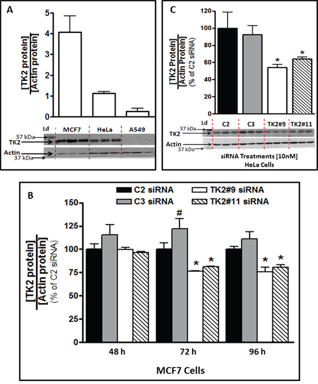 TK2 protein in MCF7 and HeLa cells is reduced by TK2 siRNA.