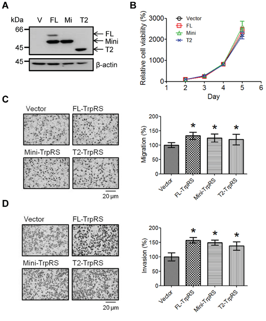 TrpRS overexpression promotes cell migration and invasion.