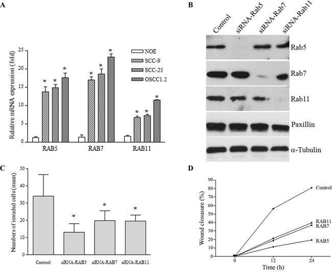 A. mRNA levels of RAB5, RAB7 and RAB11 estimated by qRT-PCR was elevated in a highly metastatic cell line (OSCC1.2) established from a poorly differentiated and metastatic human oral cancer (stage: T4N2b) with vascular, lymphatic and perineural invasion, as well as in the SCC-25 cell line while low expression was seen in normal oral epithelial (NOE) cells established from normal human tongue tissue (*P < 0.05).