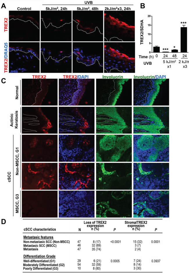 TREX2 expression is up-regulated in chronic UVB-irradiated skin and actinic keratosis lesions, whereas it is deregulated or lost in cSCC.