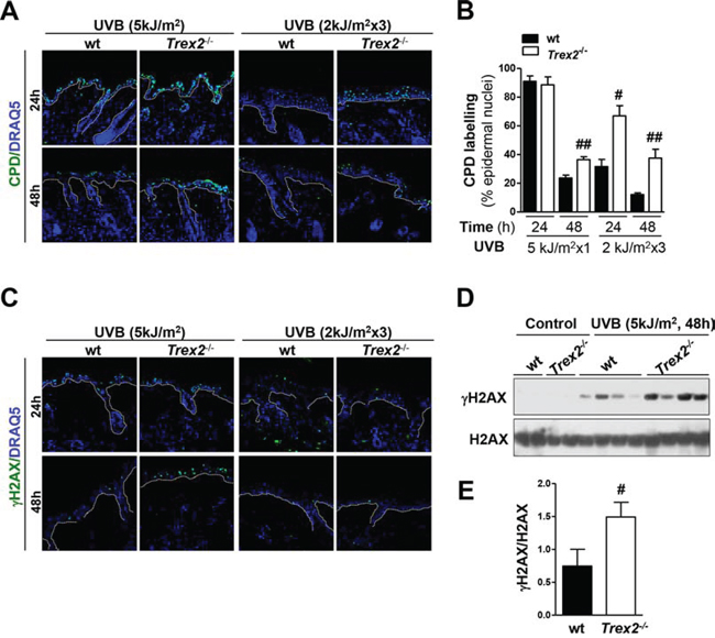 Loss of TREX2 triggers the highest accumulation of UVB-induced DNA damage in the skin.