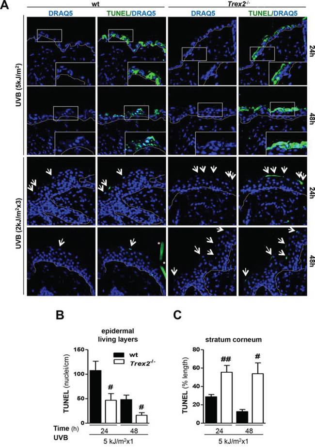 TREX2 is involved in DNA processing and facilitates cell death in UVB-irradiated skin.