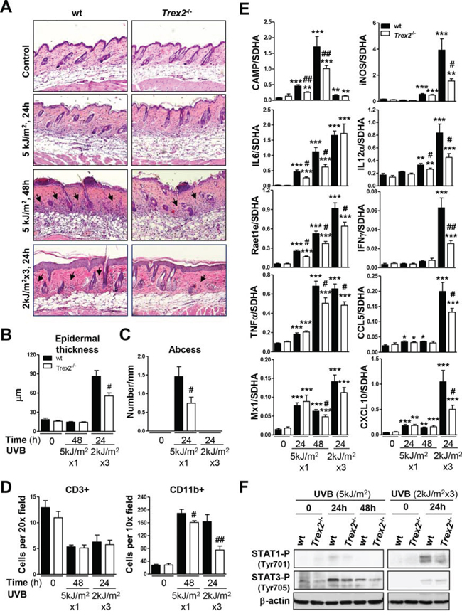 UVB-induced inflammatory response in skin is impaired by the absence of TREX2.