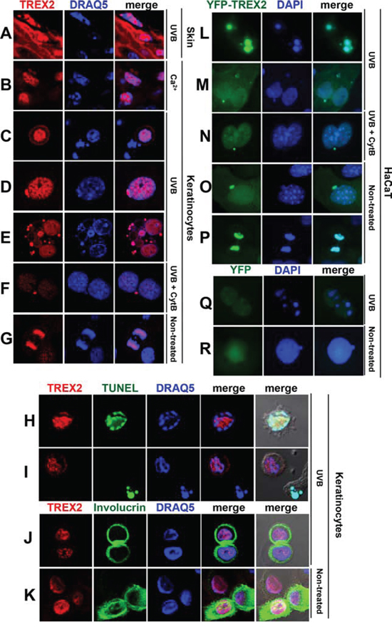 TREX2 accumulates in regions of low-density chromatin and in micronuclei.