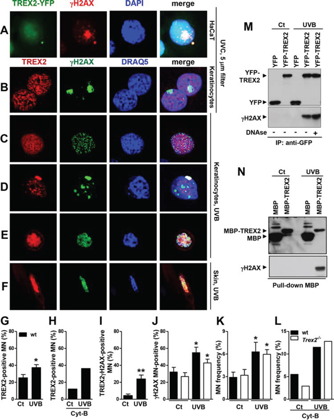 TREX2 co-localizes and interacts with γH2AX in micronuclei.