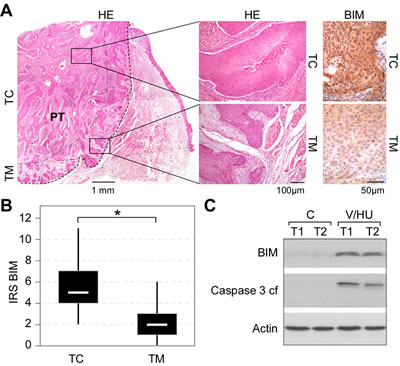 BIM expression in tumor biopsies from head and neck carcinoma patients.