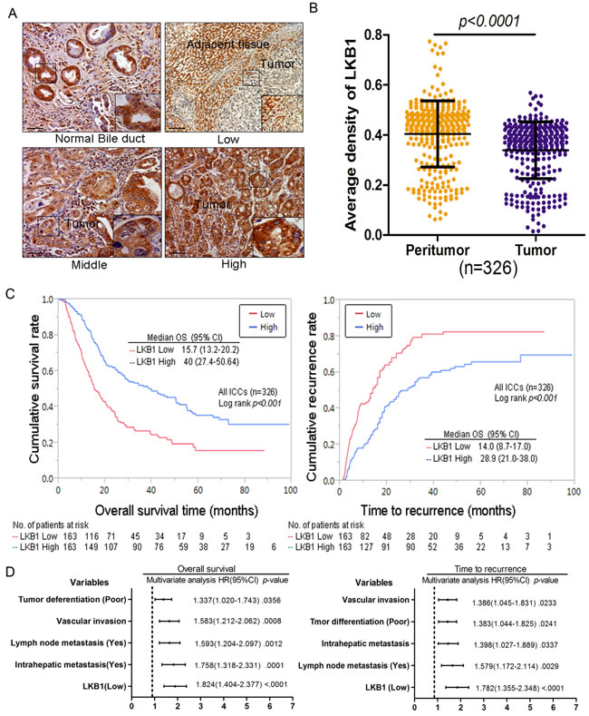 Decreased expression of LKB1 correlates with poor prognosis in cholangiocarcinoma patients.