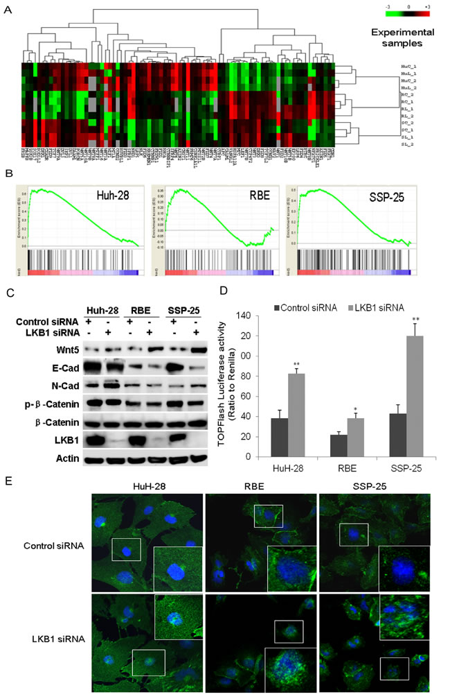 GSEA identified the enrichment of Wnt/β-catenin upon knockdown of LKB1 in ICC cells.