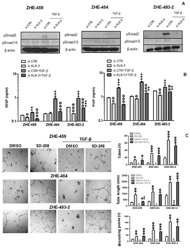 TGF-β control of VEGF release in glioblastoma-derived endothelial cells (GMEC).