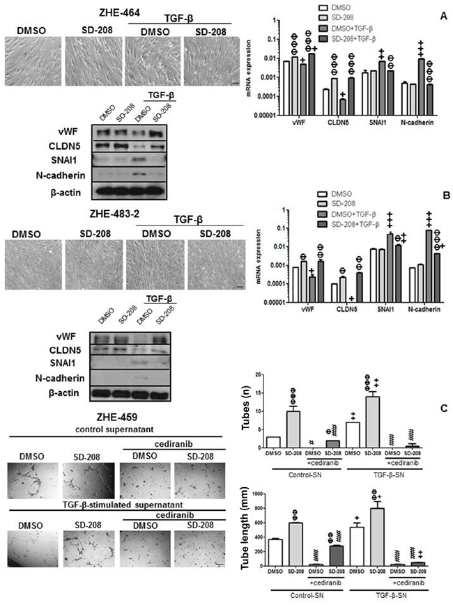 TGF-β induces EndMT and TGF-β-stimulated supernatant increases tube formation in GMEC.
