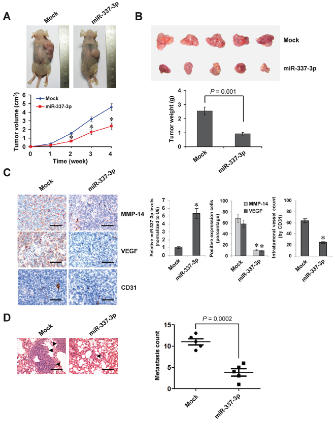 Over-expression of miR-337-3p attenuates the growth and metastasis of NB cells in vivo.