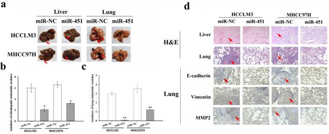 Re-expression of miR-451 inhibits metastasis of HCC cells