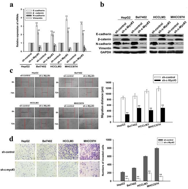 Effects of c-Myc downregulation on EMT, migration and invasion of HCC cells.