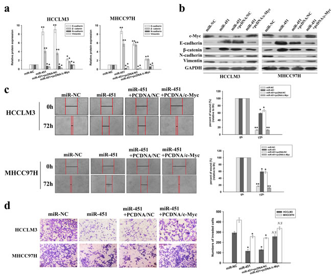 Overexpression of c-Myc reverses the effects of miR-451 upregulation on EMT, migration and invasion of HCC cells.