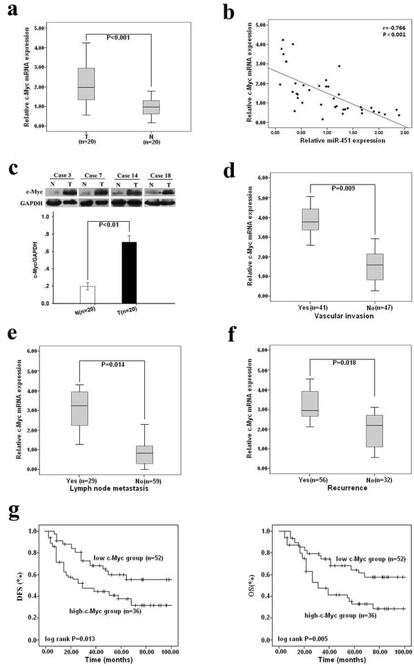 Upregulation of c-Myc in HCC tissues, inversely correlated with miR-451 expression, is associated with metastasis and poor survival of patients.