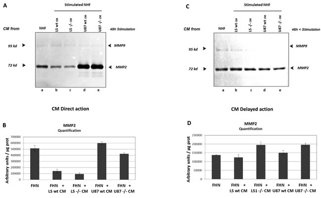 MMP2 and MMP9 expression by NHF stimulated by conditioned media (CM) from tumour cells.