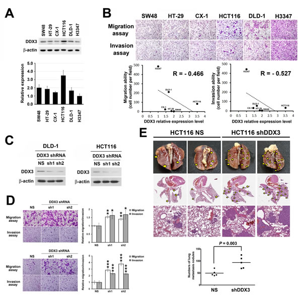 Repression of DDX3 expression resulted in increased cell migration and invasion in colon cancer cells and enhanced tumor metastasis