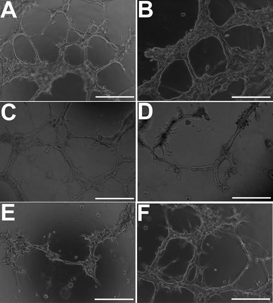 GBM cells develop morphological features of endothelial cells when cultured under endothelial-promoting conditions