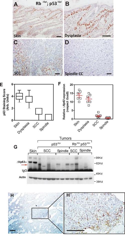ΔNp63 downregulation is an early event in spontaneous Trp53-deficient epidermal tumors.