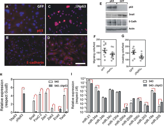 Expression of huΔNp63α in 940 cells ameliorates EMT process.