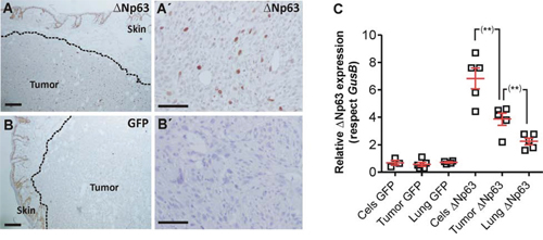 huΔNp63α expression is downregulated during spontaneous metastasis development.