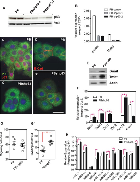 Knock down of p63 promotes a partial EMT process in PB transformed keratinocytes.